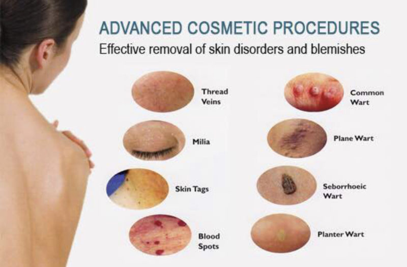 Advanced Cosmetic Procedures